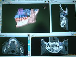 implant002