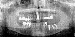implant007