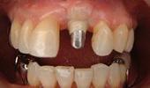 implant009
